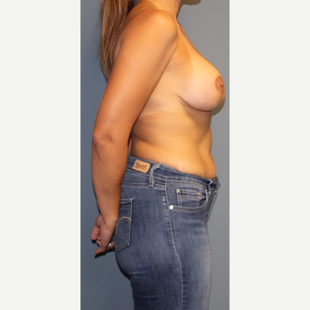 35-44 year old woman treated with Breast Lift with Implants after 3452587
