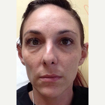 25-34 year old woman treated with Liquid Facelift before 3504928