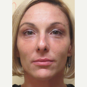 25-34 year old woman treated with Liquid Facelift after 3504928