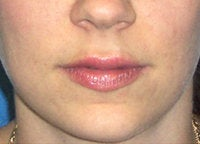 Juvederm Lip Enhancement after 52524
