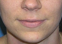Juvederm Lip Enhancement before 52524