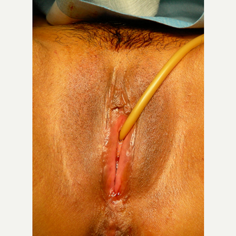 35-44 year old woman treated with Vaginal Rejuvenation before 2863811