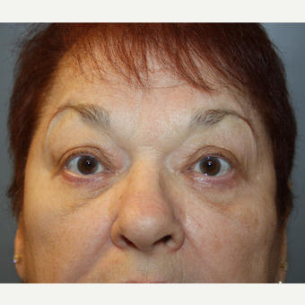 65-74 year old woman treated with Eyelid Surgery after 3709171