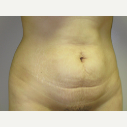 38 year old woman treated with Tummy Tuck before 3484866