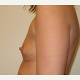 25-34 year old woman treated with Breast Implants before 3108575