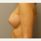 25-34 year old woman treated with Breast Implants after 3108575