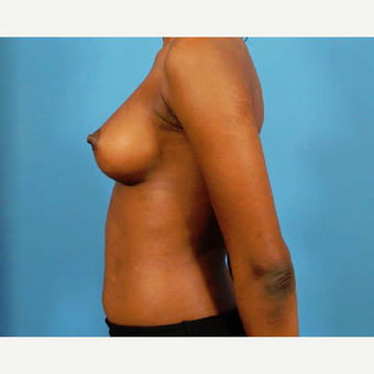 18-24 year old woman treated with Breast Augmentation after 3786961