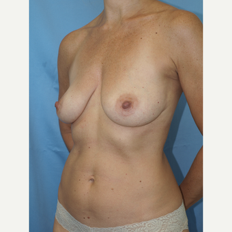 41 year old woman treated with Breast Fat Transfer and Breast Lift before 3585787