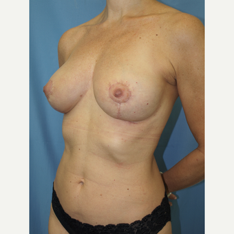 41 year old woman treated with Breast Fat Transfer and Breast Lift after 3585787