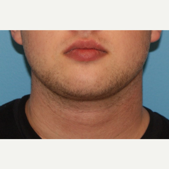 25-34 year old man treated with Neck Liposuction after 3638157