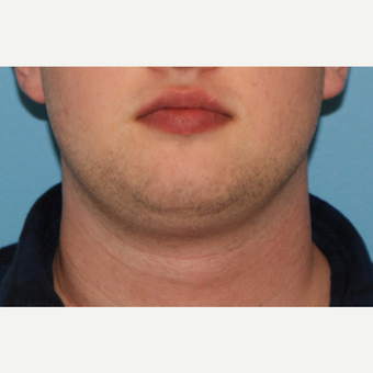 25-34 year old man treated with Neck Liposuction before 3638157