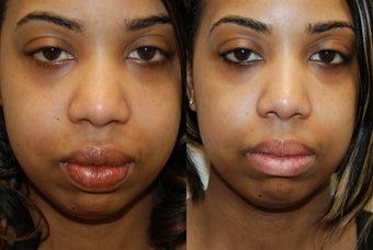 Lip Reduction Surgery. before 974817