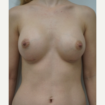 25-34 year old woman treated with Breast Augmentation after 3703176