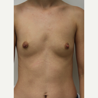 25-34 year old woman treated with Breast Augmentation before 3703176
