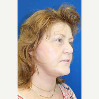 55-64 year old woman treated with Facelift after 3842365