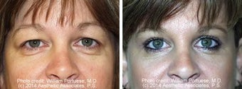 Blepharoplasty before 91481