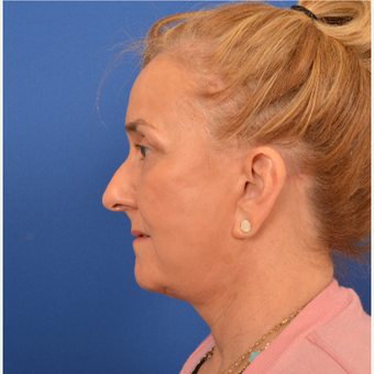 Neck Lift after 3220664