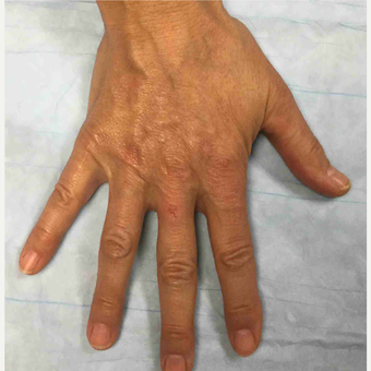 45-54 year old woman treated with Radiesse to her hands after 3169276