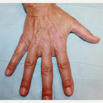 45-54 year old woman treated with Radiesse to her hands before 3169276