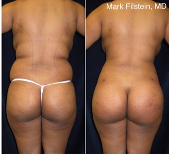 25-34 year old woman treated with Brazilian Butt Lift before 3364696