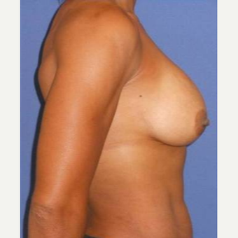 Subglandular Breast Augmentation after 3650822