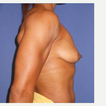 Subglandular Breast Augmentation before 3650822
