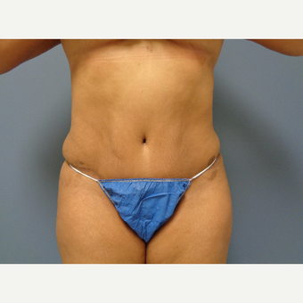 45-54 year old woman treated with Tummy Tuck after 3747826