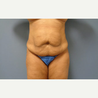 45-54 year old woman treated with Tummy Tuck before 3747826