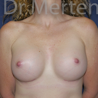 35-44 year old woman treated with Breast Augmentation after 3551957