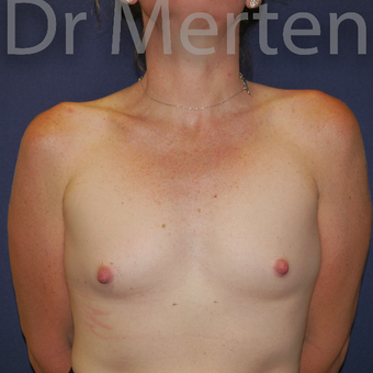 35-44 year old woman treated with Breast Augmentation before 3551957