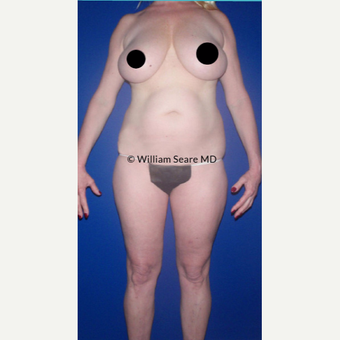 35-44 year old woman treated with Liposuction before 3749574