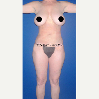 35-44 year old woman treated with Liposuction after 3749574