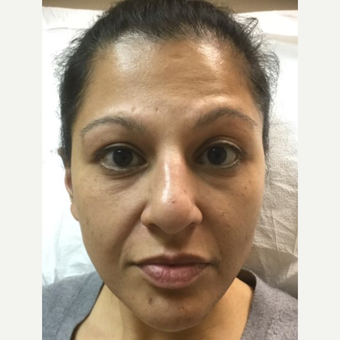 35-44 year old woman treated with Injectable Fillers before 3443655