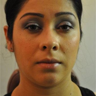 25-34 year old woman treated with Buccal Fat Removal before 2830628