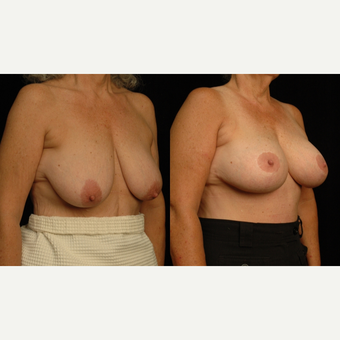 65-74 year old woman treated with Breast Lift with Implants before 3659800