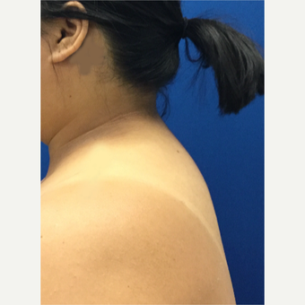 Laser Liposuction of 'Buffalo Hump' after 3259376