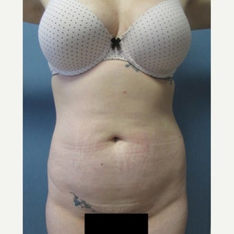 29 year old patient - Liposuction of Abdomen & Bilateral Flanks before 2259090