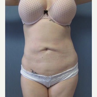 29 year old patient - Liposuction of Abdomen & Bilateral Flanks after 2259090