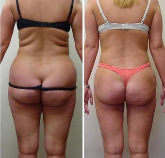 28 yr old woman requesting liposuction for resistant fat areas after 680158