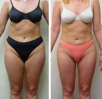 28 yr old woman requesting liposuction for resistant fat areas before 680158