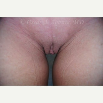 47 yo had Labiaplasty of Labia Minora, Clitoral Hood Reduction and Vaginoplasty (View 3 of 4) after 2222893