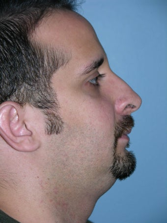 Male Rhinoplasty before 1320659