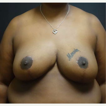 35-44 year old woman treated with Breast Reduction after 3446968