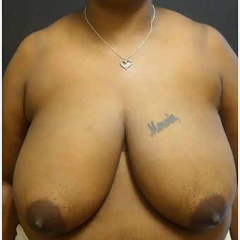 35-44 year old woman treated with Breast Reduction before 3446968