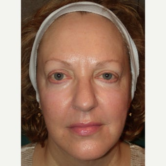 45-54 year old woman treated with RadiantLift Procedure after 1933067