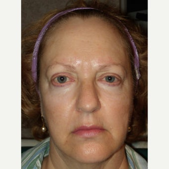 45-54 year old woman treated with RadiantLift Procedure before 1933067