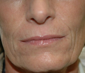 Juvederm before 871619