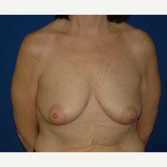 55-64 year old woman treated with Breast Lift with Implants before 3181966