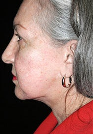 Lower Face Lift and Neck Lift before 1258914