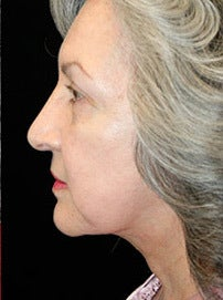 Lower Face Lift and Neck Lift after 1258914